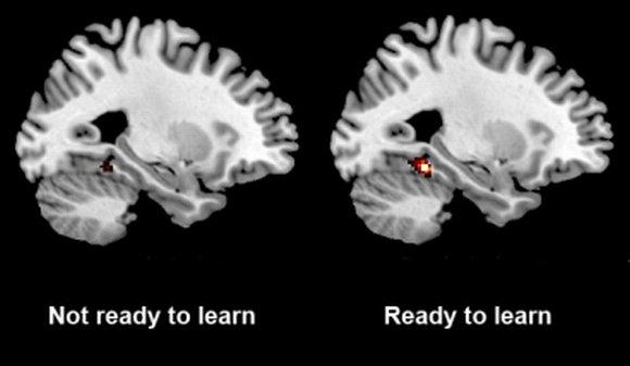 Brain scans activity